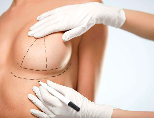 Breast Lift Málaga