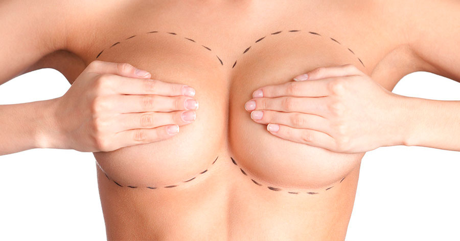 Breast reduction Málaga